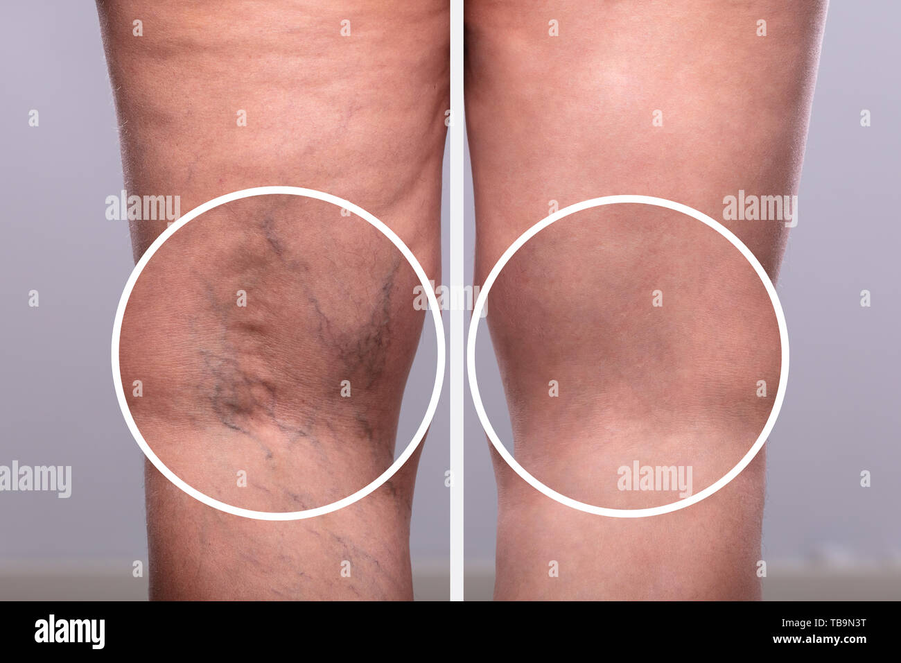 Phlebitis Stock Photos & Phlebitis Stock Images - Alamy