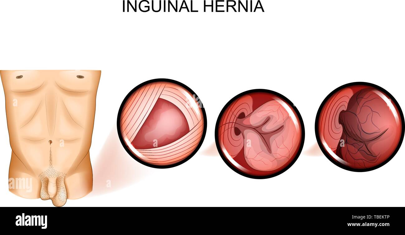 vector illustration of inguinal hernia entrapment. Surgery Stock Vector