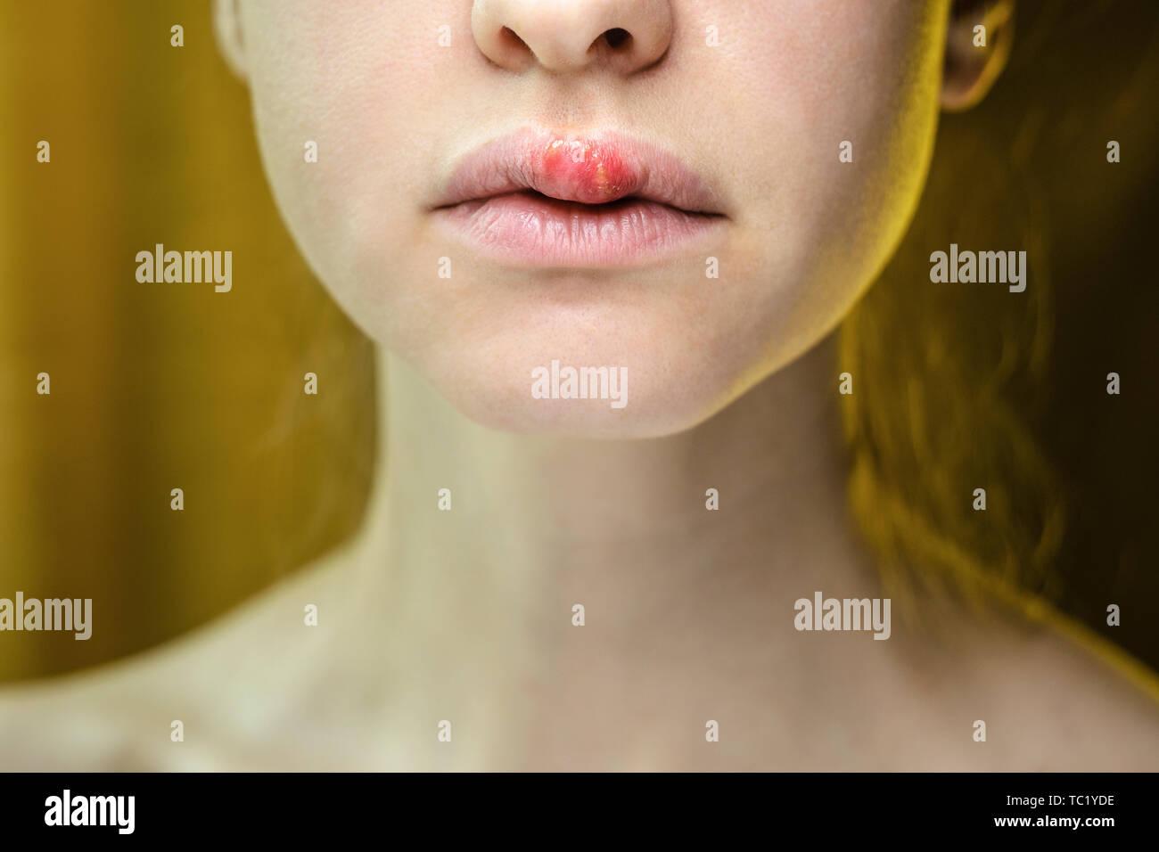 Upper Lip Stock Photos & Upper Lip Stock Images - Alamy