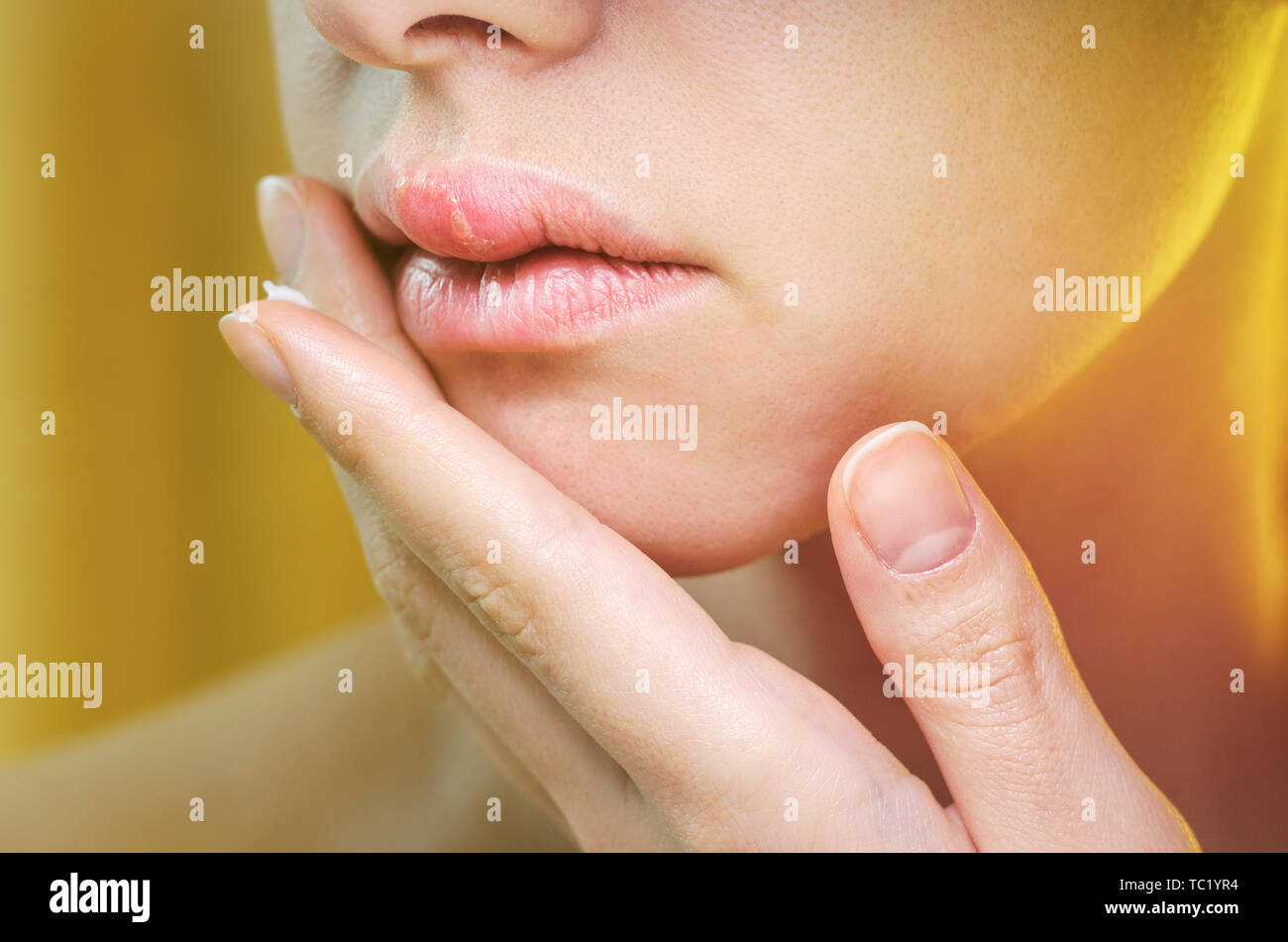 Scabs Stock Photos & Scabs Stock Images - Alamy