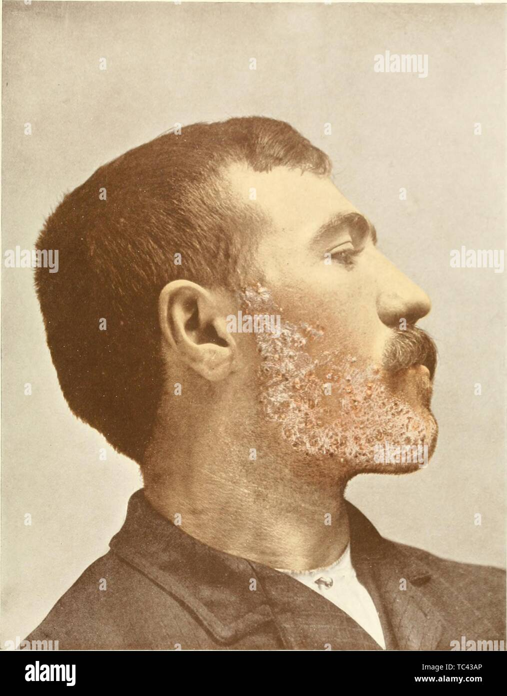Engraved portrait of a male human infected with sycosis vulgaris, a chronic infection of hair follicles of the chin or bearded region, from the book 'Photographic atlas of the diseases of the skin' by George Henry Fox, 1905. Courtesy Internet Archive. () - Stock Image