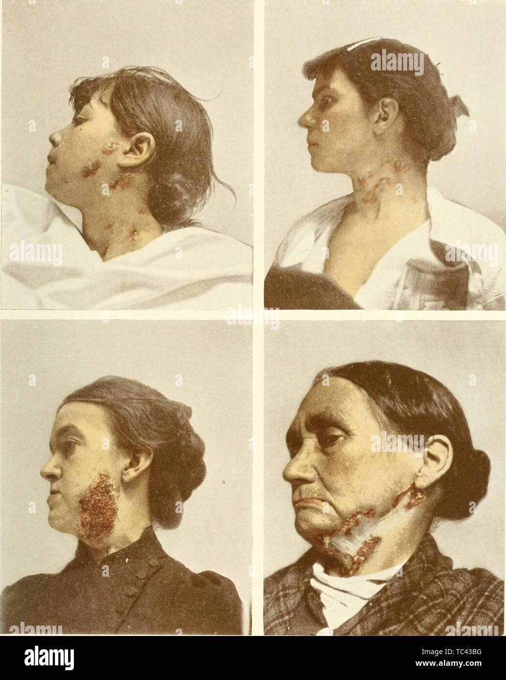 Engravings of four females infected with scrofula, mycobacterial cervical lymphadenitis of the cervical lymph nodes, from the book 'Photographic atlas of the diseases of the skin' by George Henry Fox, 1905. Courtesy Internet Archive. () - Stock Image