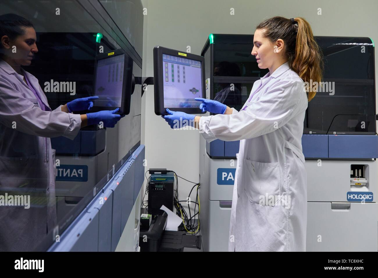 Integrated solutions for molecular tests in the diagnostic laboratory, Cervical cancer screening program. The cervix is the lower part of the uterus. - Stock Image