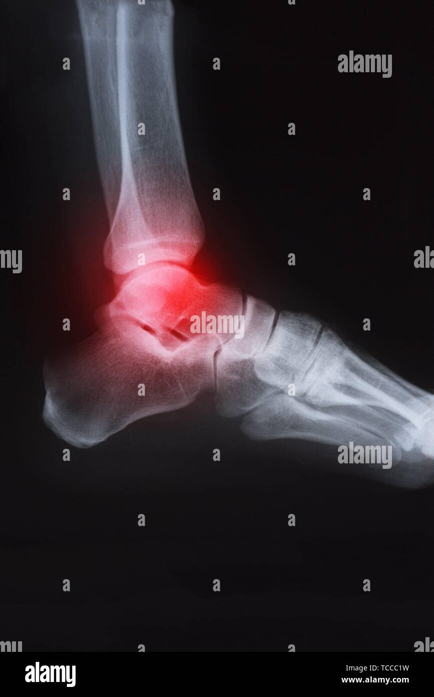 X ray image of ankle with arthritis. - Stock Image