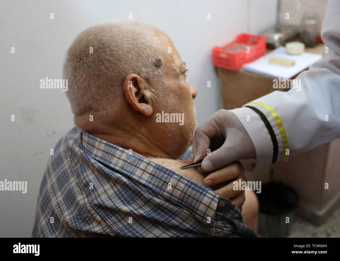 June 10, 2019 - Gaza City, Gaza Strip, Palestinian Territory - A Palestinian patient receives a bee-sting therapy by a health practitioner at a clinic in Gaza city on June 10, 2019. Apitherapy is the use of substances from honeybees, such as honey, propolis, royal jelly, or even venom (extracted or from live bees), to relieve various medical conditions. Most claims of apitherapy the medical use of bee venom are anecdotal and have not been proved to the satisfaction of scientists, although believers say it helps relieve pain from multiple sclerosis and rheumatoid arthritis and certain other ail - Stock Image