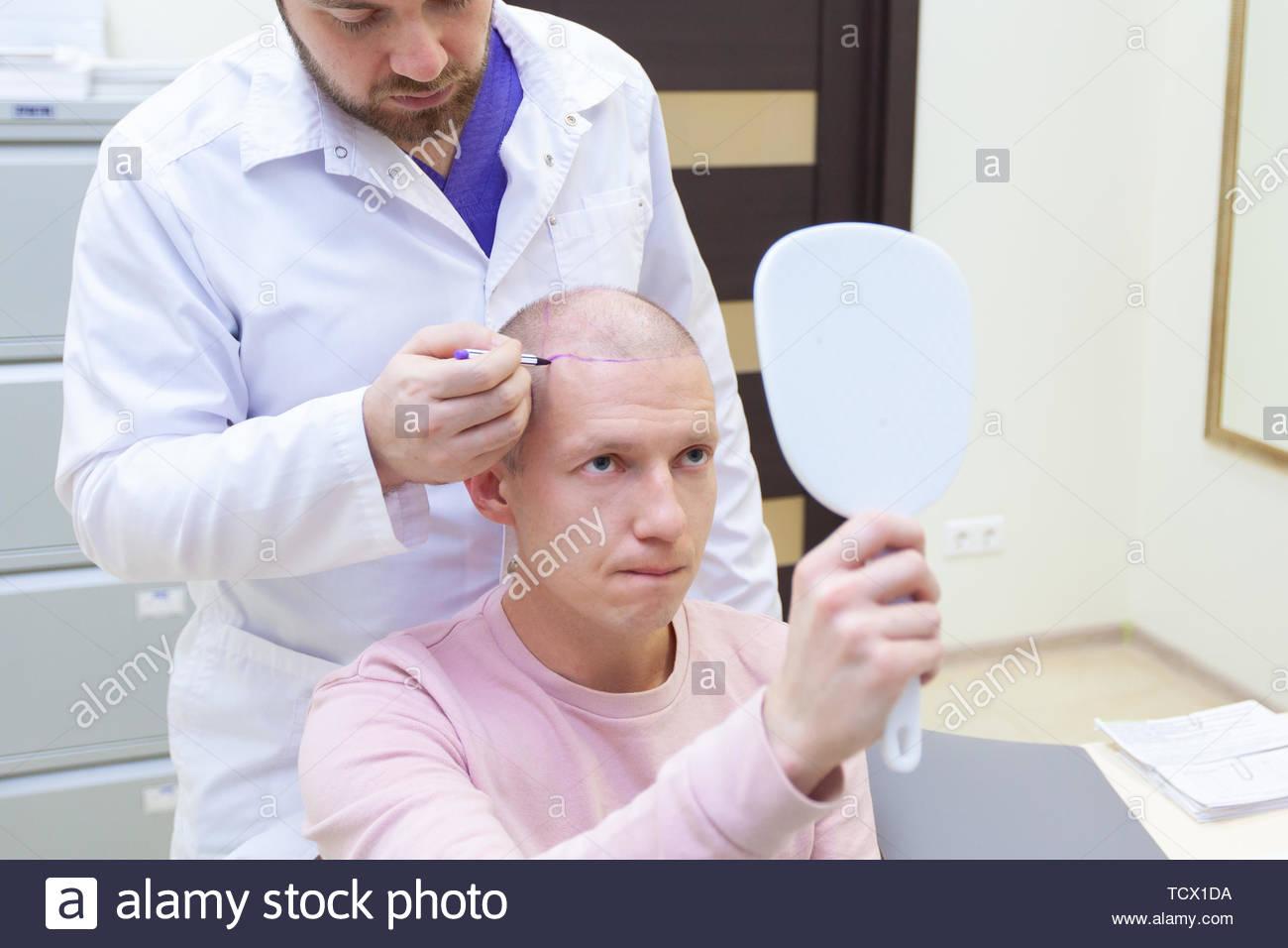 Baldness Stock Photos & Baldness Stock Images - Alamy