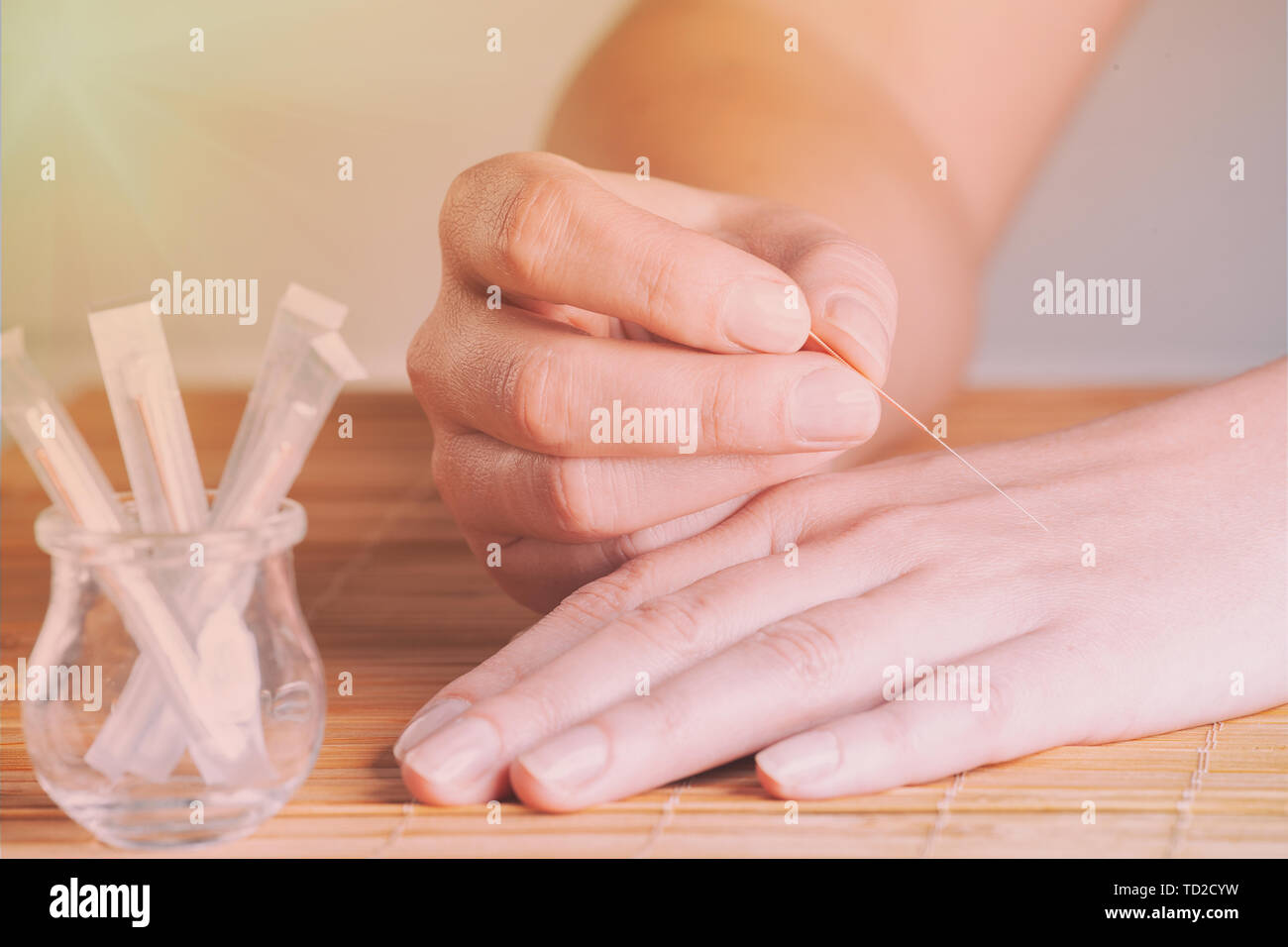 Self applying acupuncture needle into hand - Stock Image