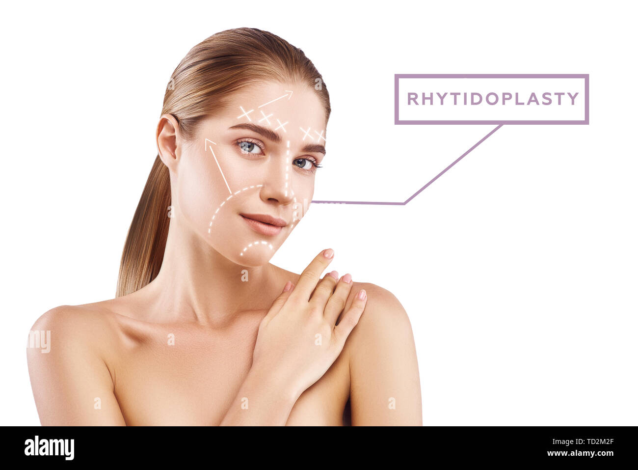 Rhytidoplasty concept. Portrait of beautiful and young woman with perfect skin and graphic lines and arrows over her face. Isolated on white background. Anti aging treatment and lifting skin concept - Stock Image