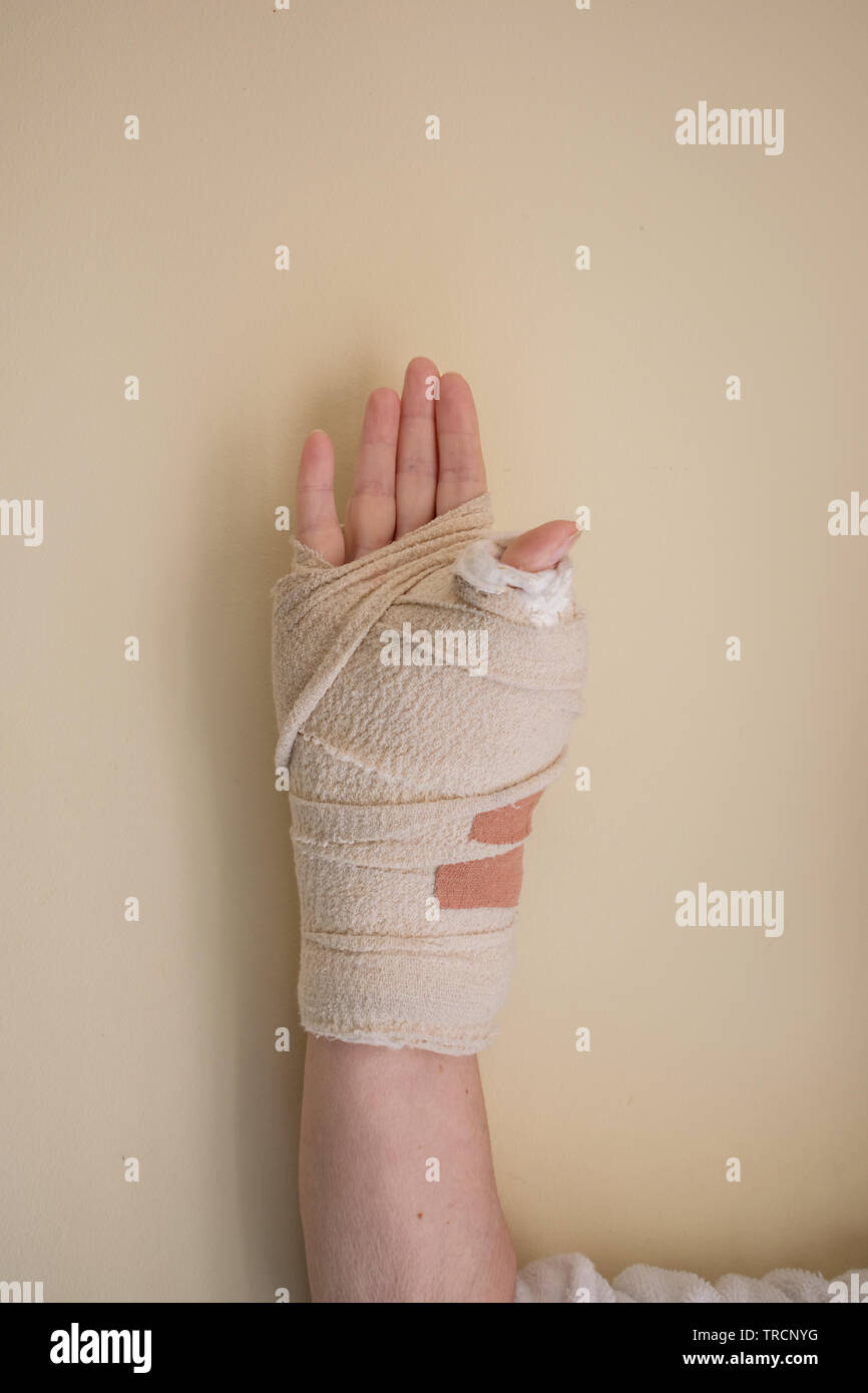 A woman's right wrist in a light cast after an operation - Stock Image
