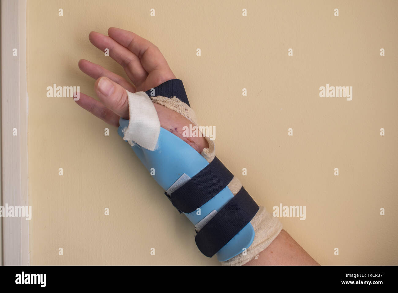 a woman's right wrist in a light cast following thumb joint surgery - Stock Image