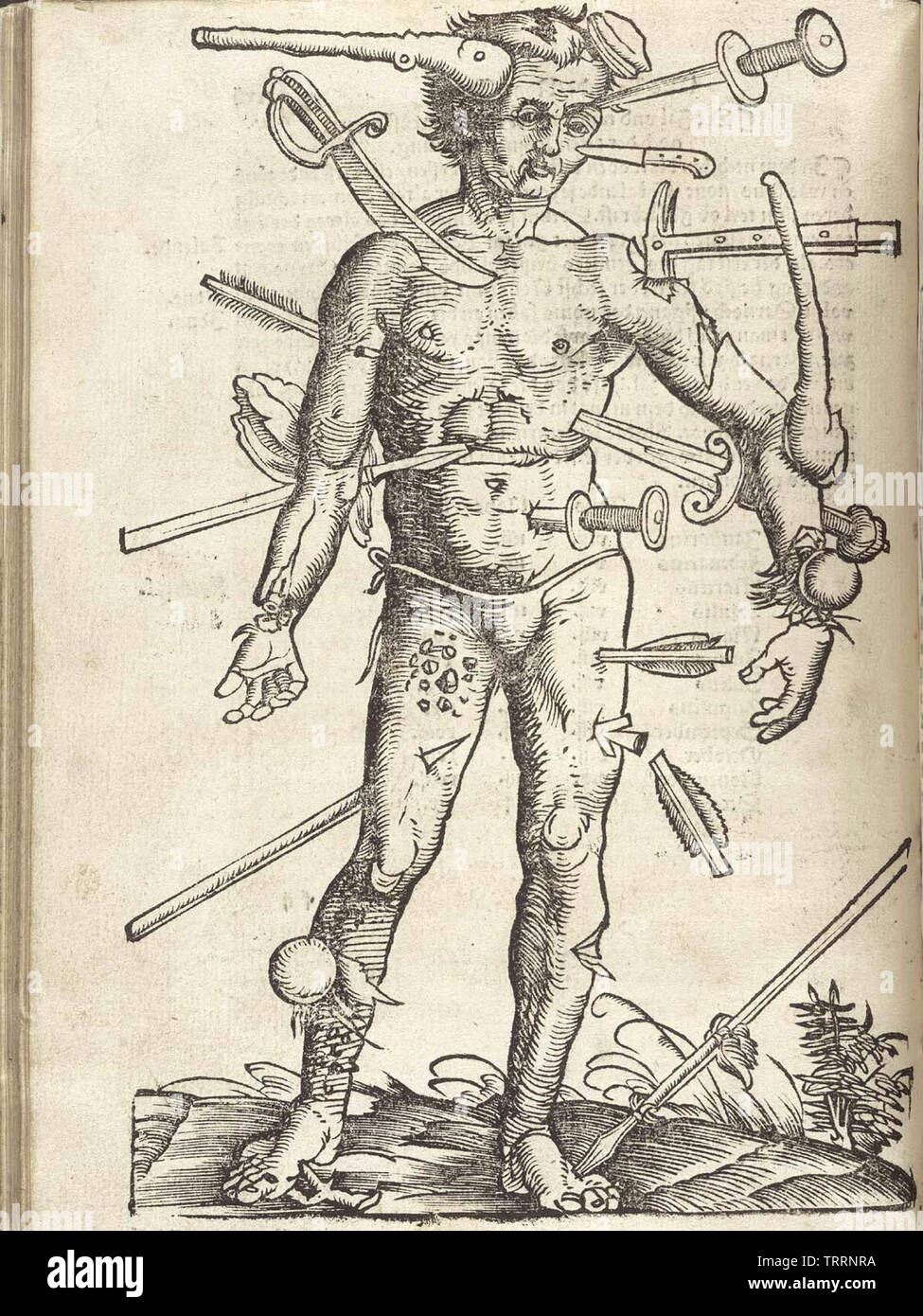 An illustration showing a variety of wounds from the Feldbuch der Wundarznei (Field manual for the treatment of wounds) by Hans von Gersdorff, (1517); illustration by Hans Wechtlin. - Stock Image