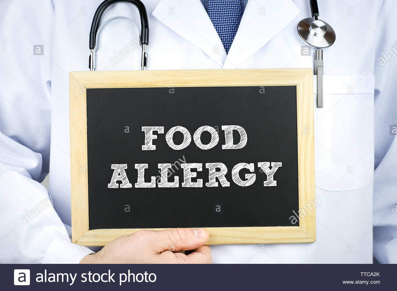 Food Allergy diagnosis message on chalkboard by a doctor - Stock Image