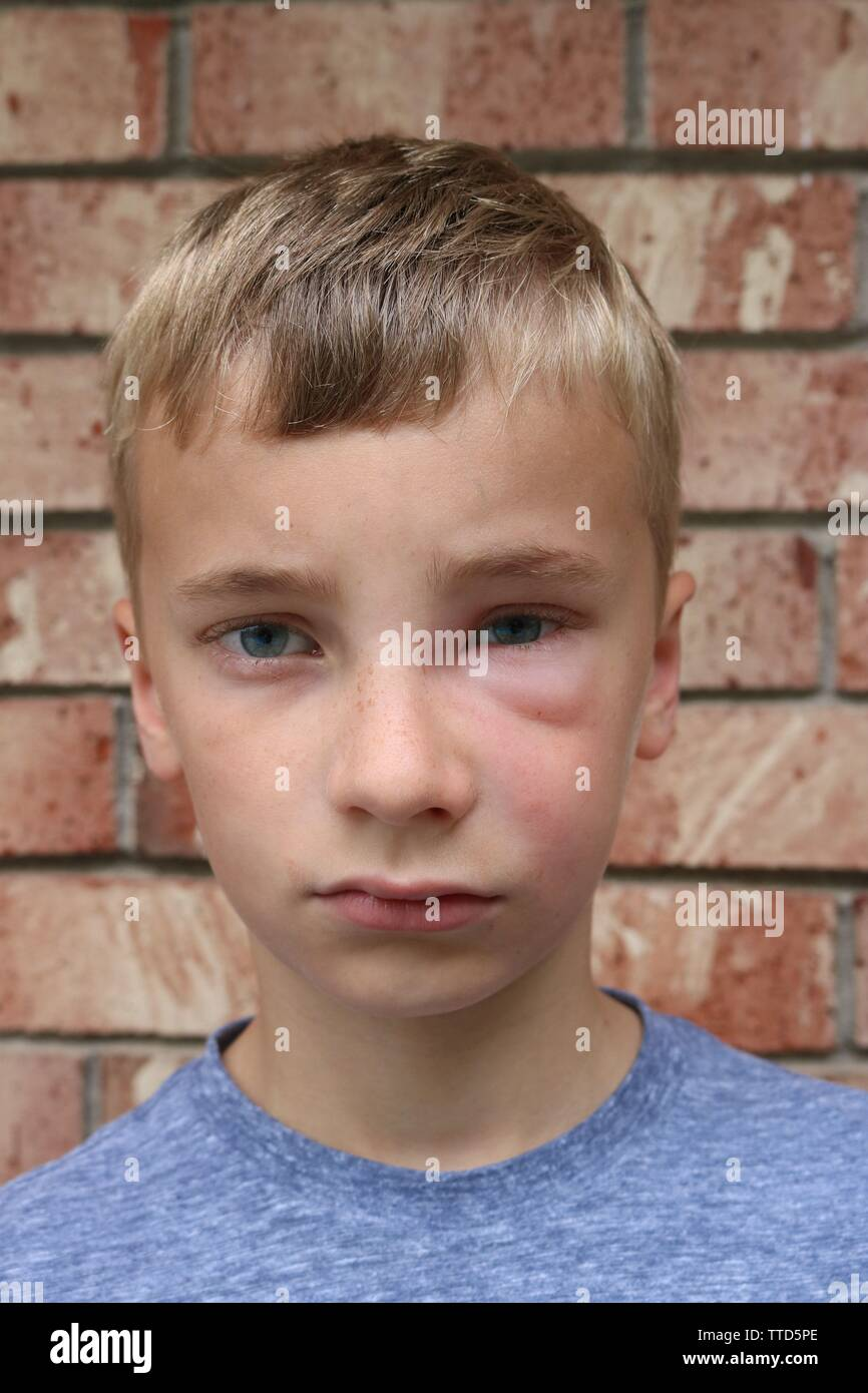 Portrait of a young boy with facial swelling due to hornet sting - Stock Image