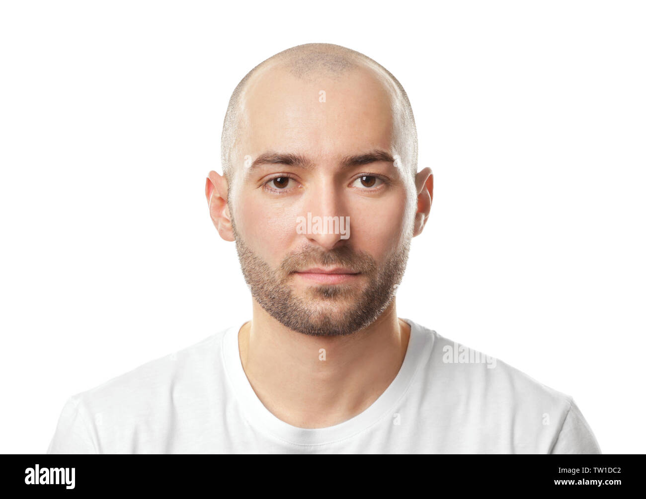 When do young to what balding Balding Causes,