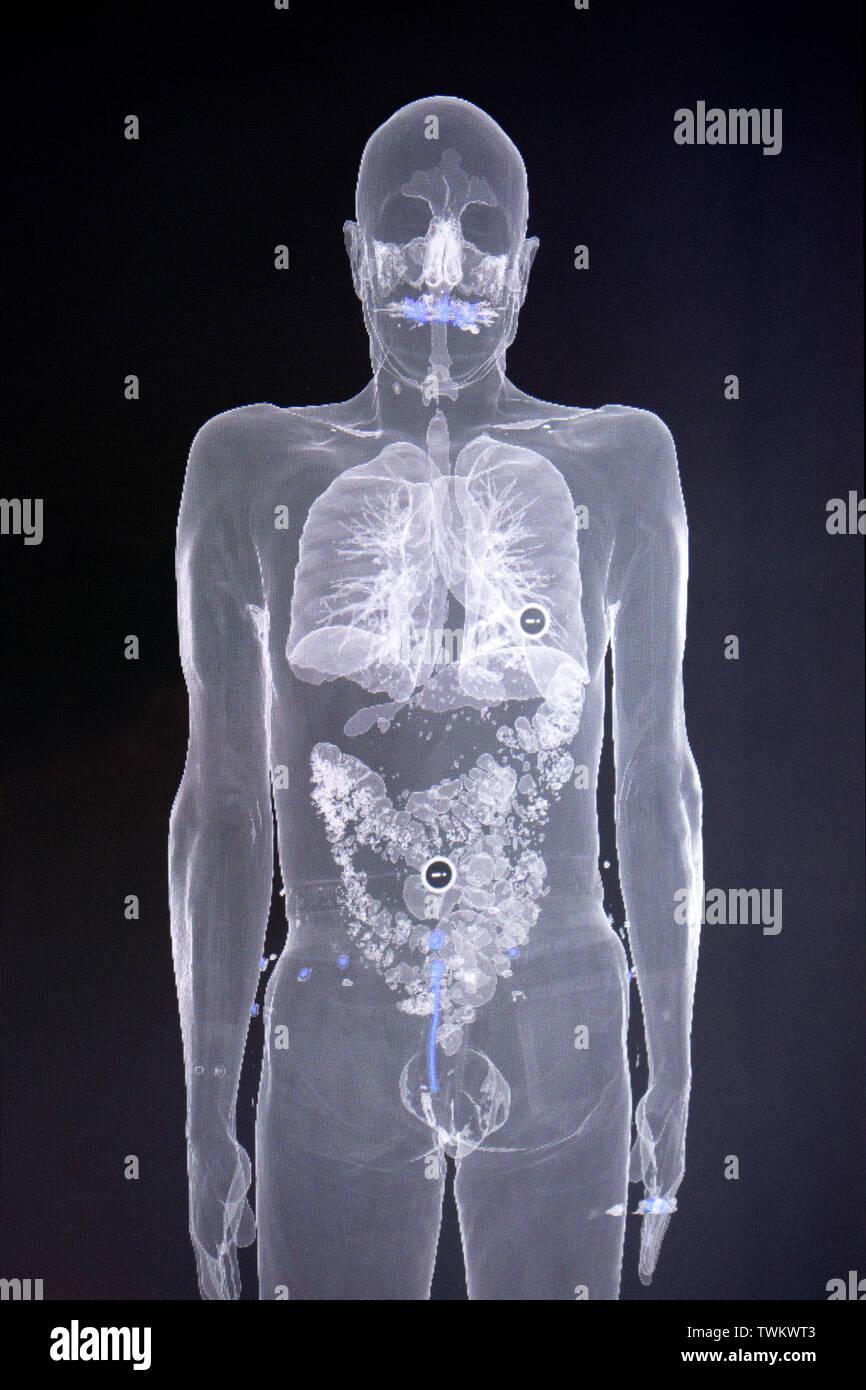 Human body - Stock Image