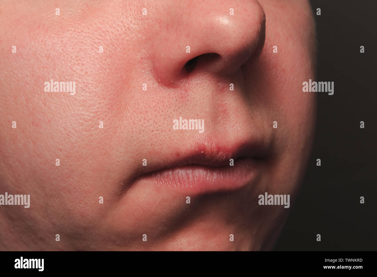 Upper Lip Stock Photos & Upper Lip Stock Images - Page 2 - Alamy