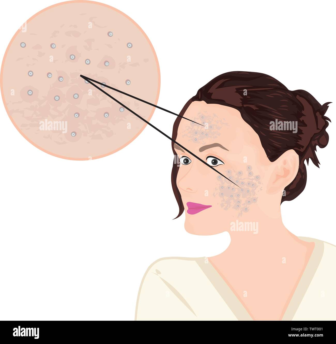 acne on a face vector illustration showing skin problem - stock image