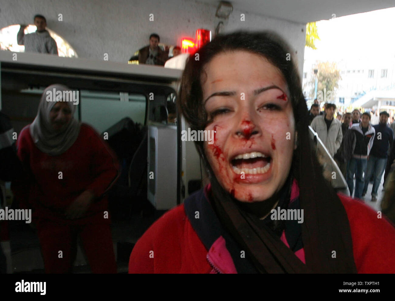 At Least Nobody Was Killed It Was No >> A Woman With Blood On Her Face Arrives At Al Shifa Hospital After An