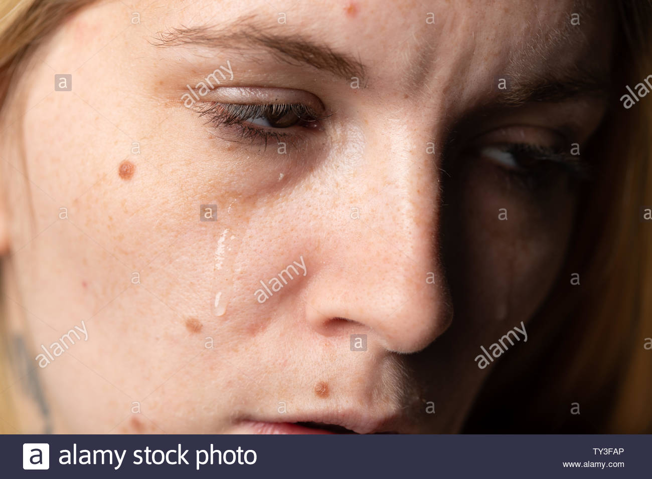 Woman with acne in tears - Stock Image