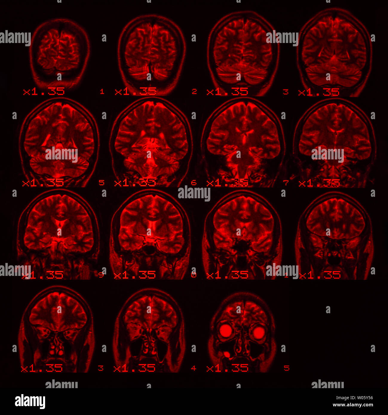 MRI of the brain on a black background with red backlight. Square photo Stock Photo
