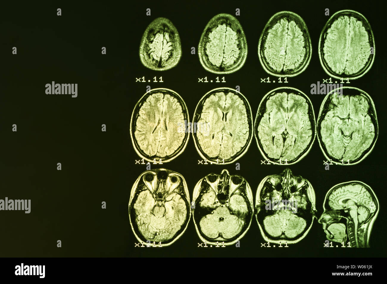 MRI of the brain on a black background with yellow   backlight. Left   place for advertising inscription Stock Photo