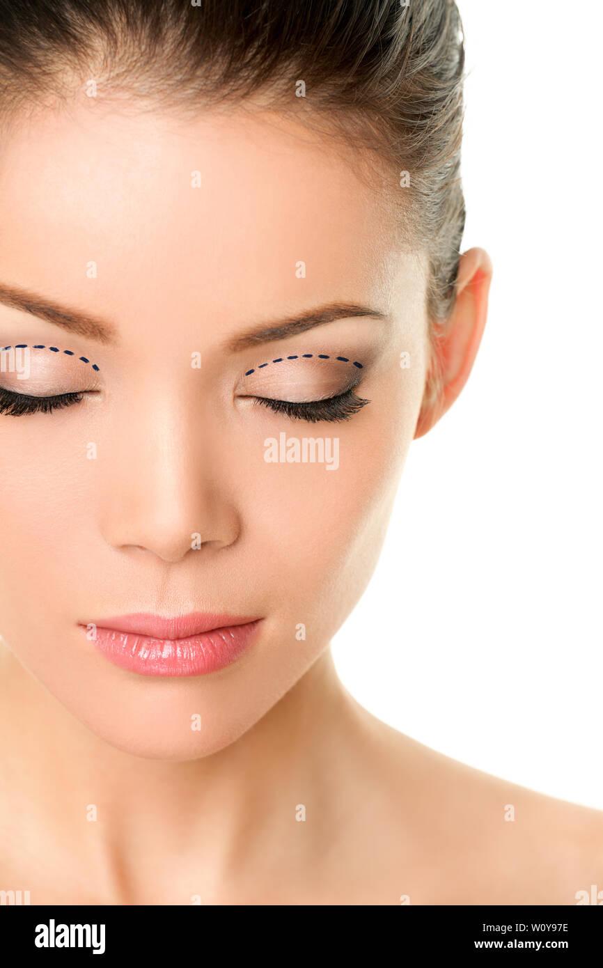 China Eyelid Surgery Stock Photos & China Eyelid Surgery Stock