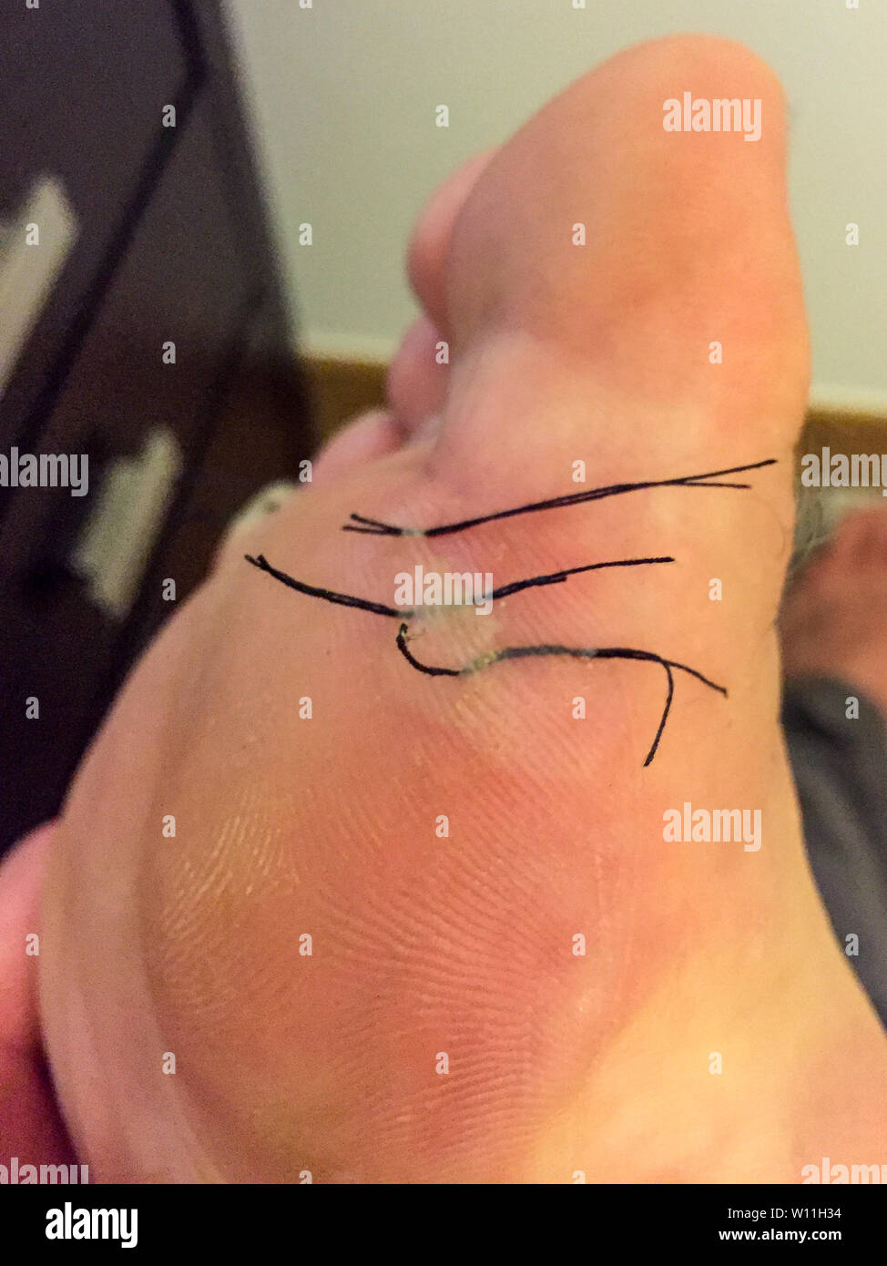 A close up of the underneath of a painful big toe with a blister due to lots of walking along the Camino de Santiago needling the blister to remove th - Stock Image