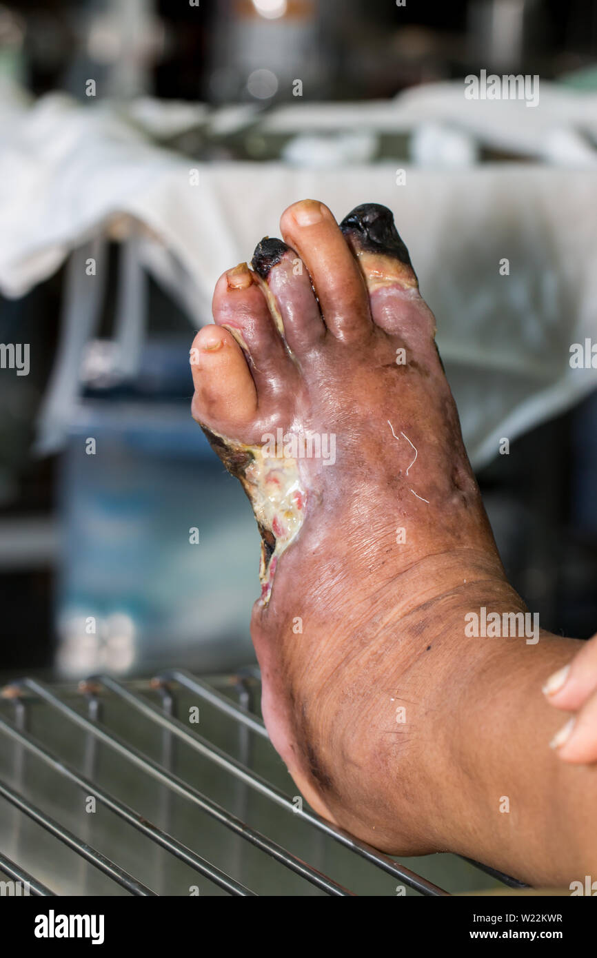 Diabetic Foot Ulcer High Resolution Stock Photography And Images