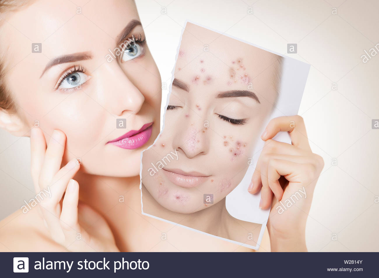 closeup portrait of woman with clean skin holding portrait with pimpled skin - Stock Image