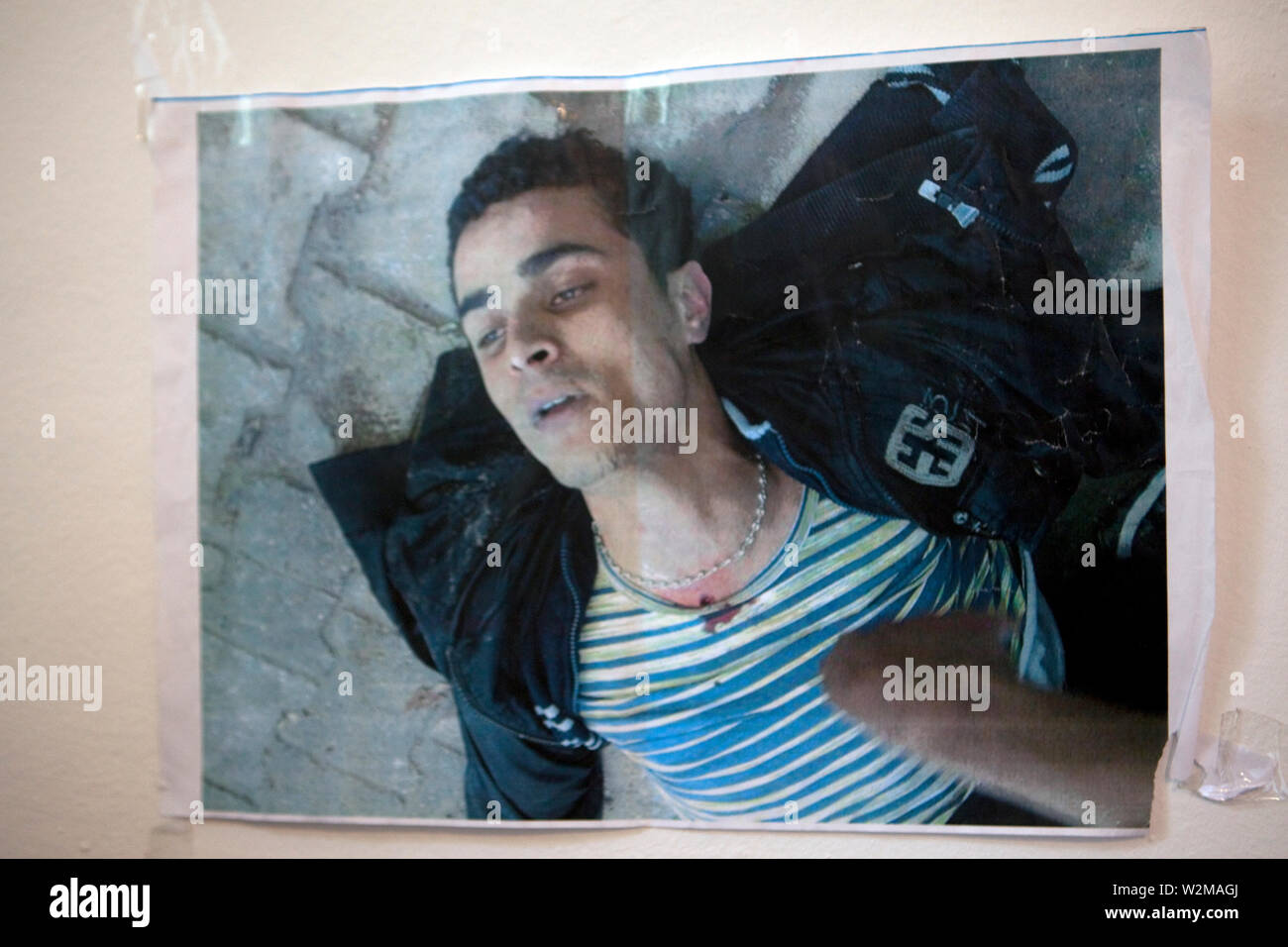 October 22, 2011- Tunis, Tunisia - Rached El Arbi, a 21-year-old Tunisian man who was shot on 13 January 2011 and has undergone six operation. Six men wounded during the revolution have started a hunger strike on October 18th, in a bid to further pressure the Tunisian Government to secure medical and financial compensation to the martyrs of the Tunisian revolution at the headquarters of the independent collective blog Nawaat, in central Tunis. Two of the wounded have had at least one of their legs amputated, and others no longer have the use of their legs. People injured during the protests th - Stock Image
