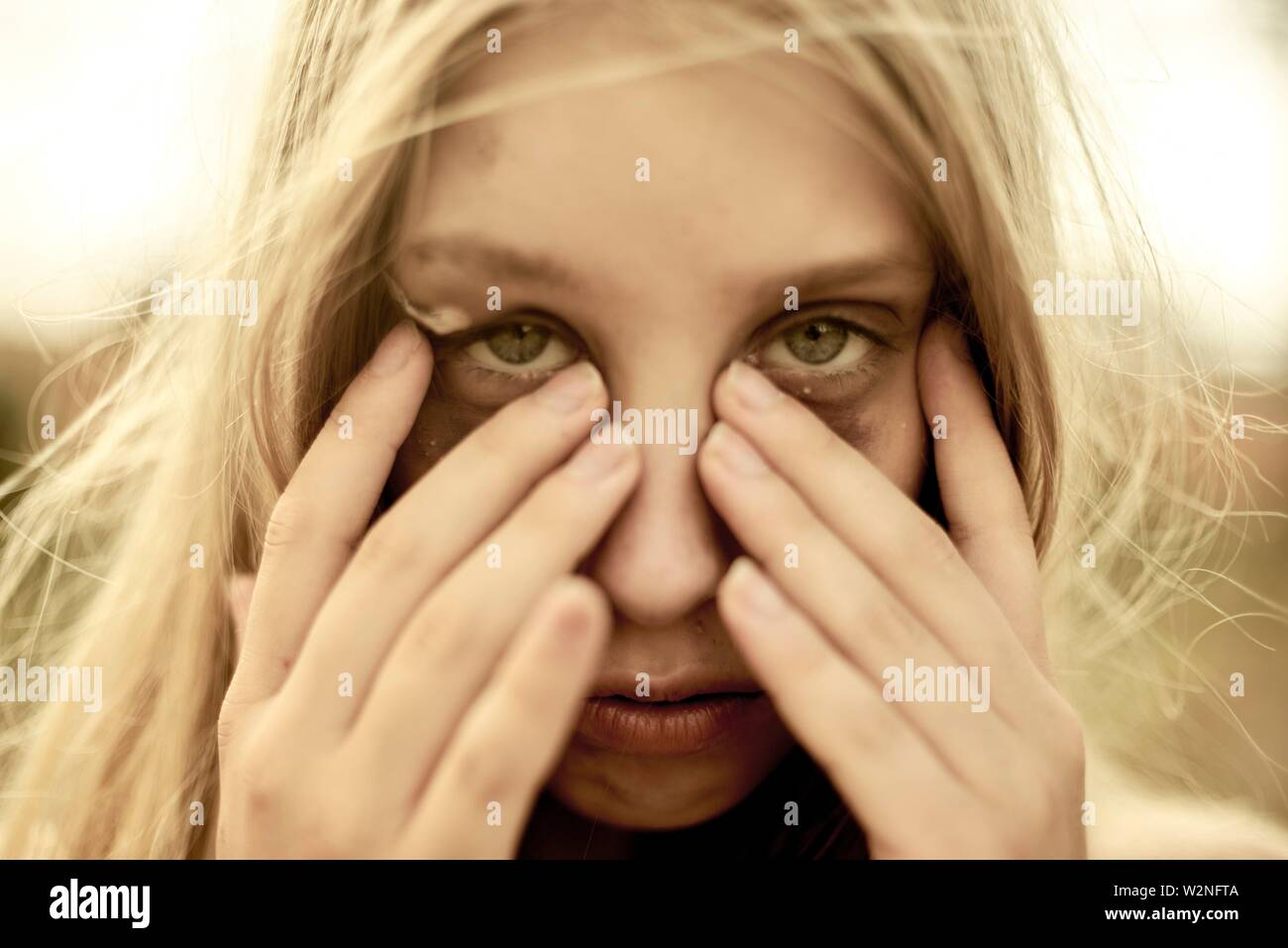 young defaced teenage woman with black eye, scars - Stock Image