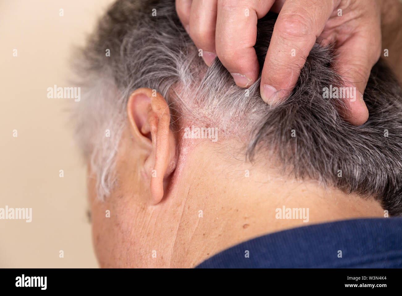 Psoriasis Vulgaris, psoriatic skin disease in hair, skin patches are typicaly red, itchy, and scaly, macro with narrow focus. - Stock Image