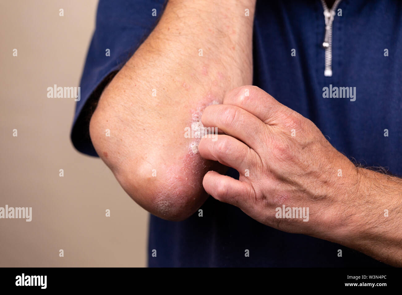 Close up dermatitis on skin, ill allergic rash dermatitis eczema of patient , atopic dermatitis symptom skin detail texture , Fungus The concept derma - Stock Image