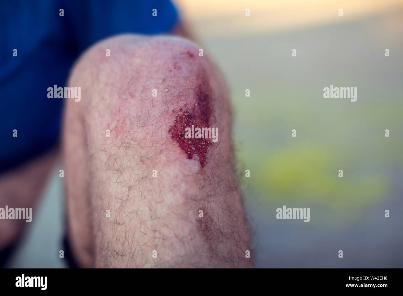 Skin Abrasion Stock Photos & Skin Abrasion Stock Images - Alamy