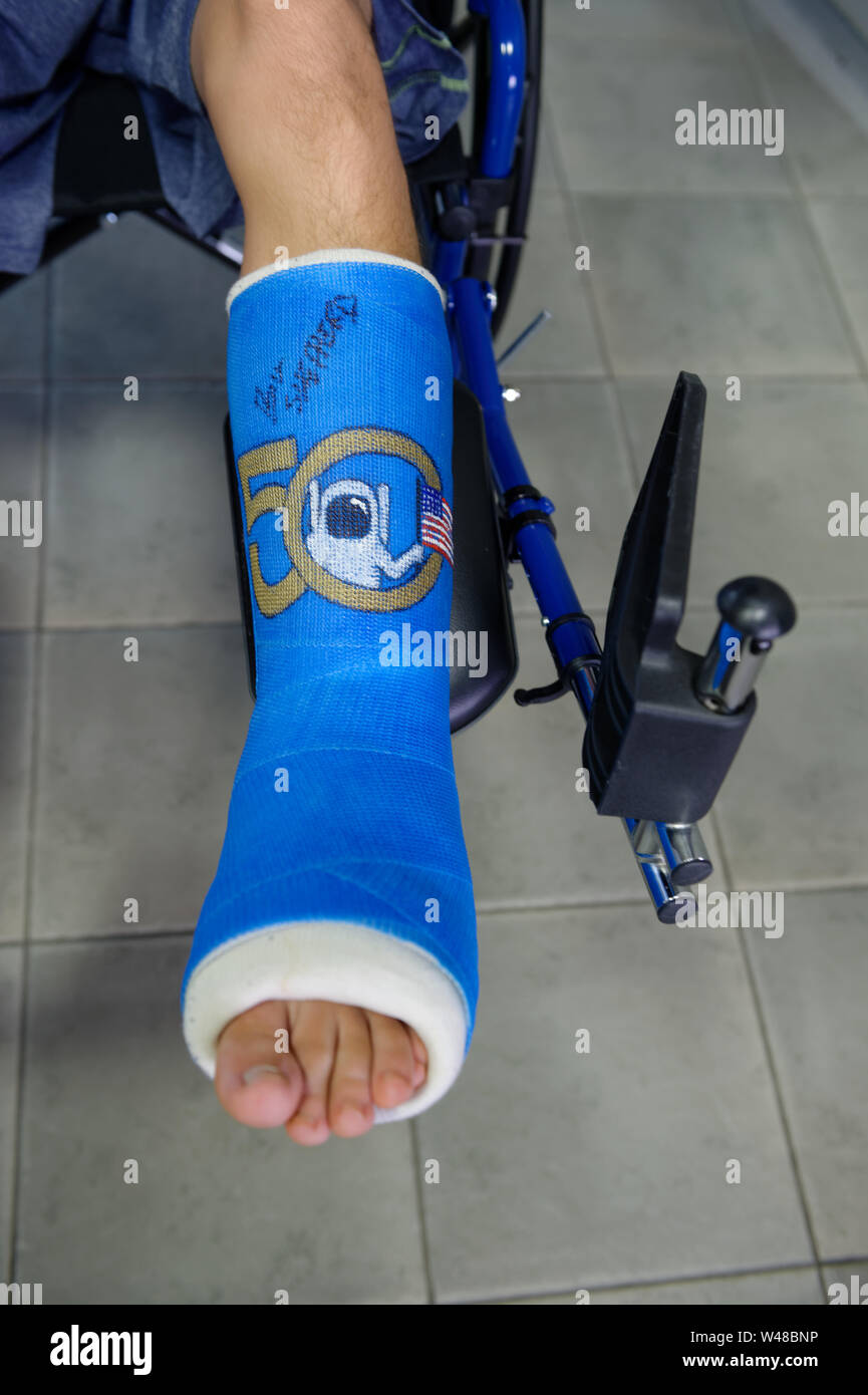 Foot Cast Stock Photos & Foot Cast Stock Images - Alamy