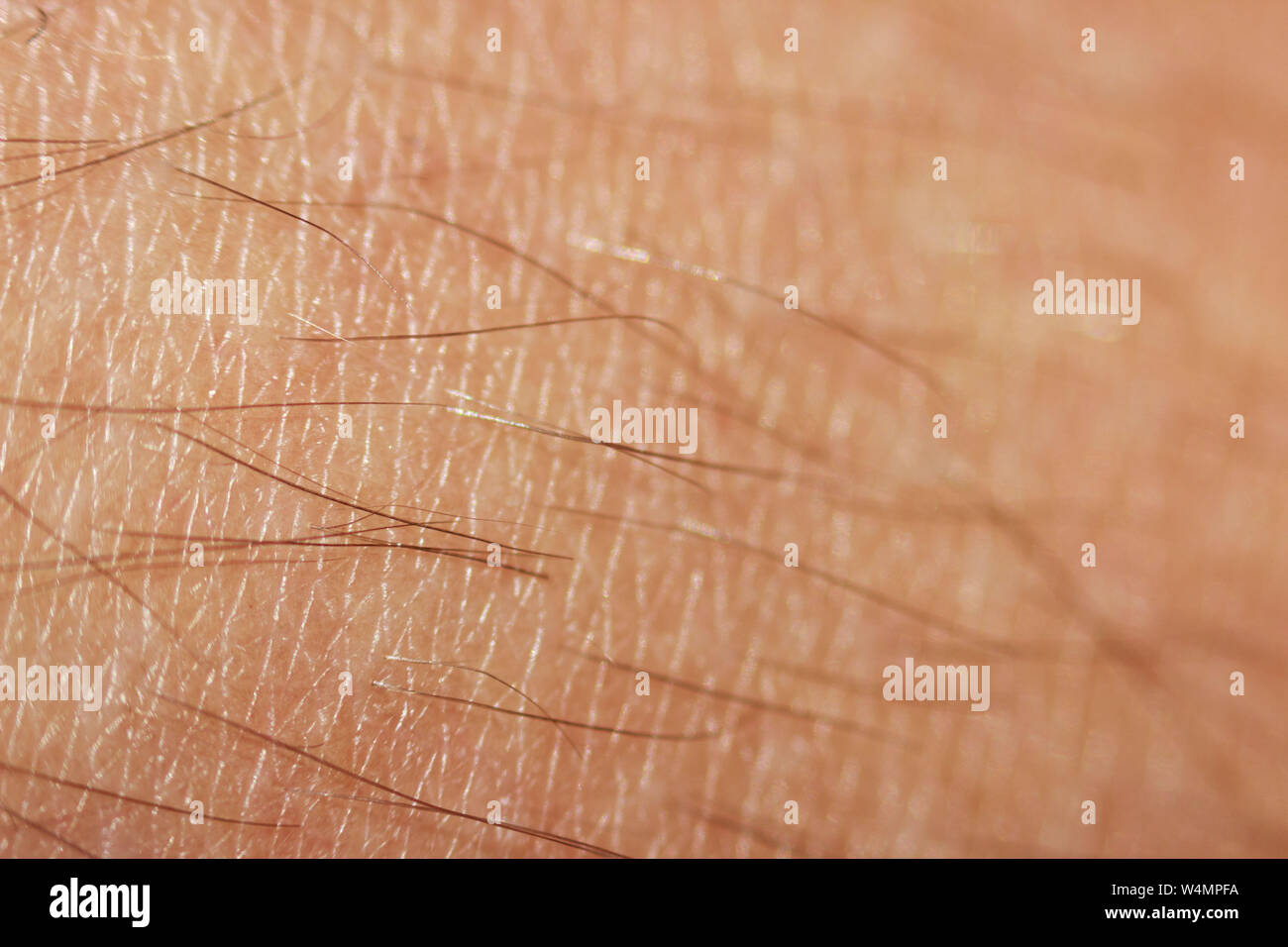 hairy legs before epilation with long black hair. Macro Stock Photo