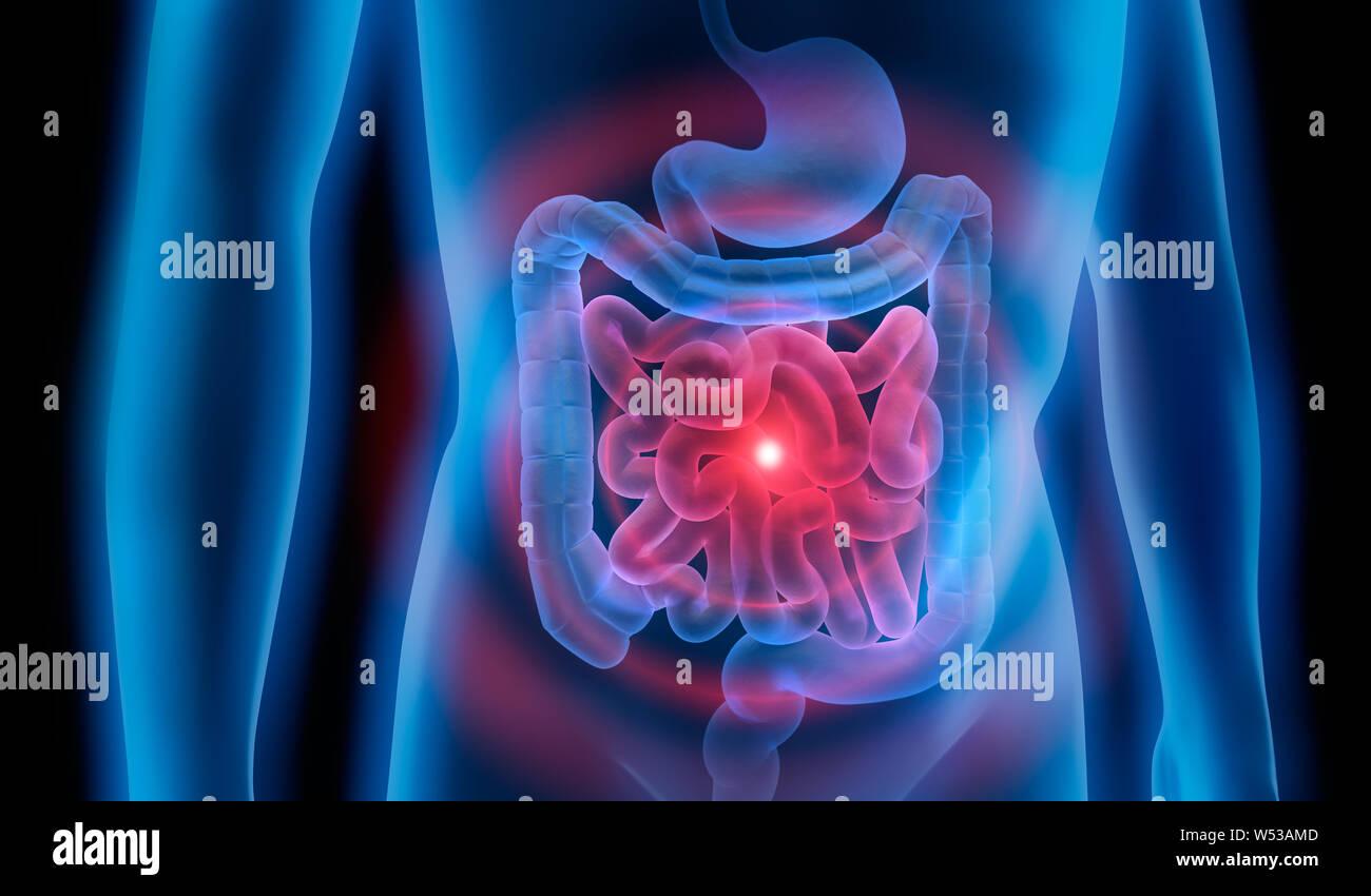 Abdomen Inflammation Stock Photos & Abdomen Inflammation Stock