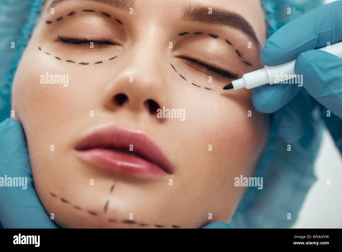 Becoming perfect. Close up photo of young woman with glowing skin in blue medical hat waiting for facial surgery while plastic surgeon in blue gloves drawing dashed line under eyes. Beauty concept. Facelift. Plastic surgery Stock Photo