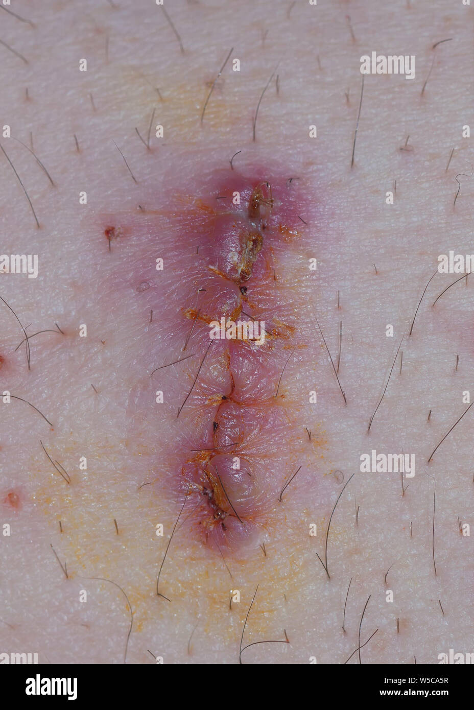 Pus Wound Stock Photos & Pus Wound Stock Images - Alamy