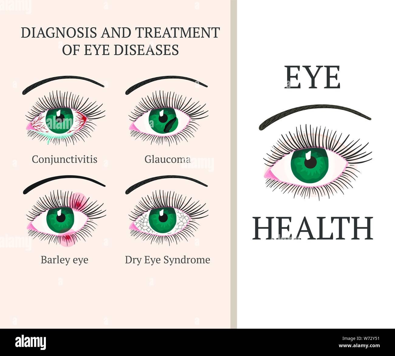 Dry Eye Syndrome Stock Photos & Dry Eye Syndrome Stock