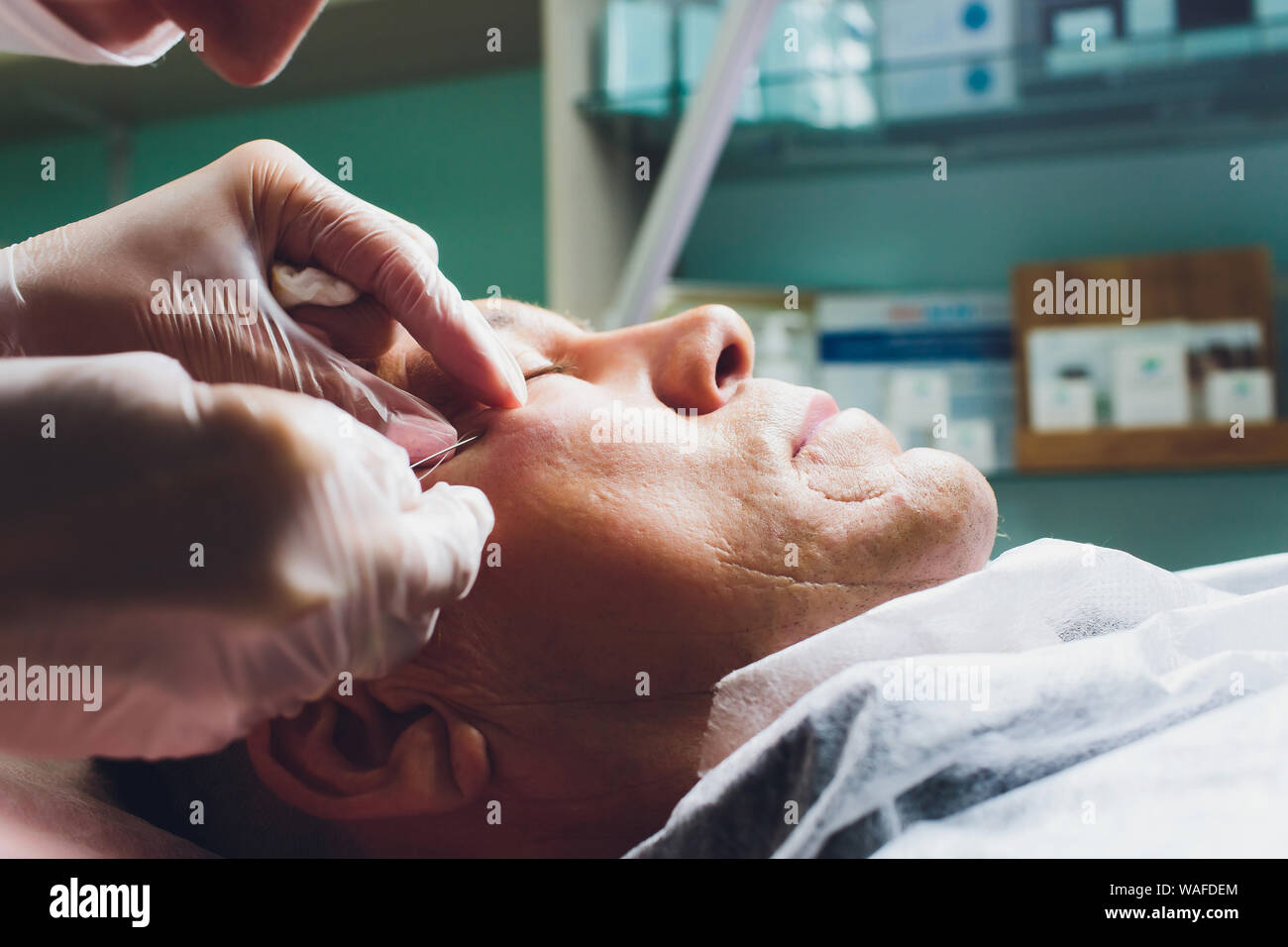Close-up of procedure for face lifting PDO Suture operation