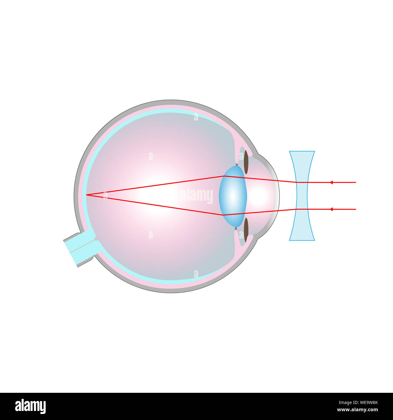 Vision disorder, illustration. Short-sightedness (myopia) corrected with a concave lens. Stock Photo