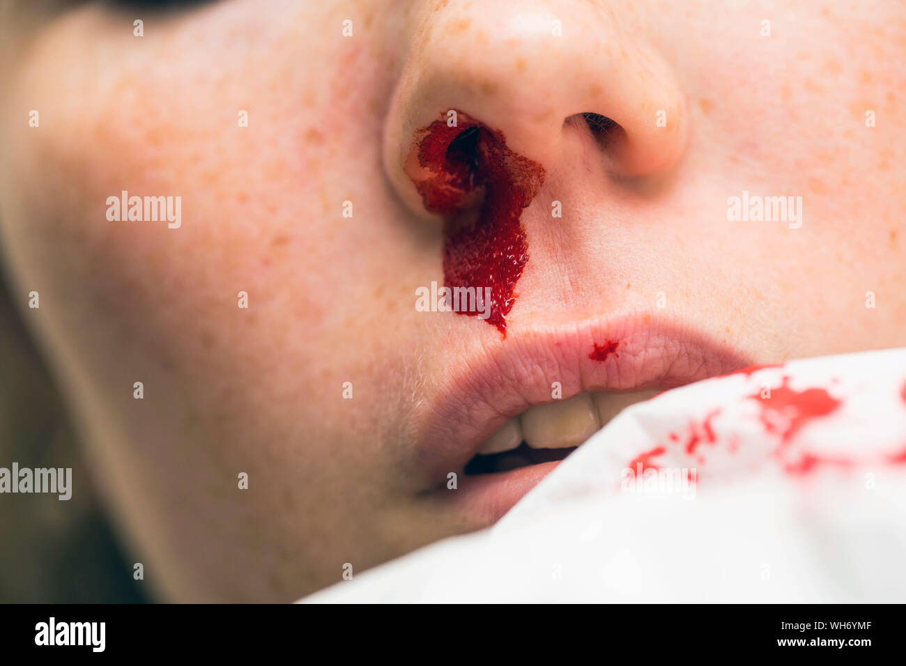 Nose Bandage High Resolution Stock Photography and Images ...
