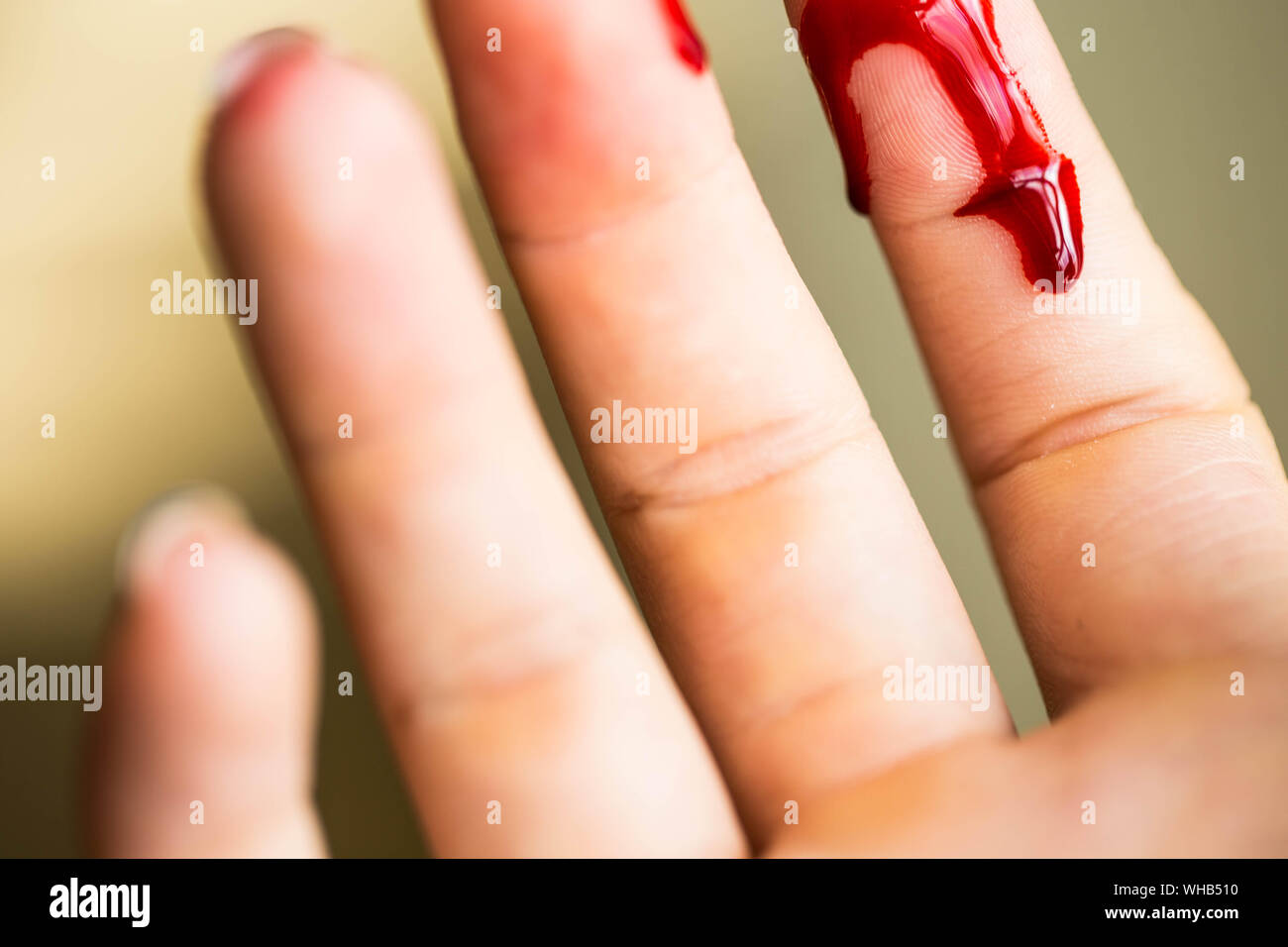 Bleeding Thumb High Resolution Stock Photography And Images Alamy
