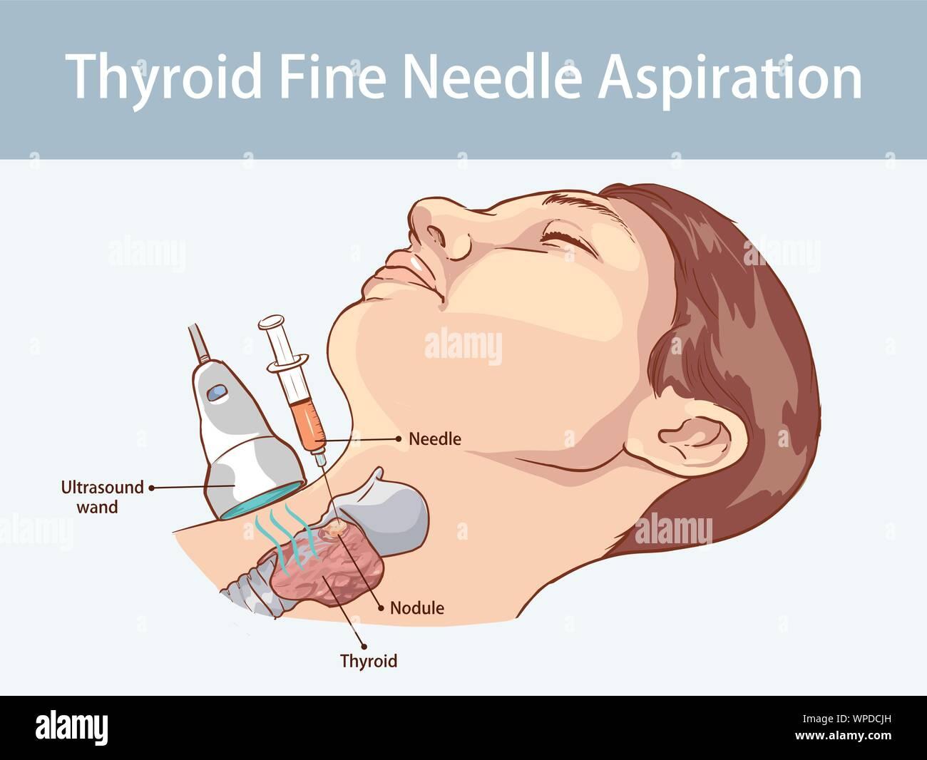 Fine Needle Aspiration of Thyroid Nodules Stock Vector