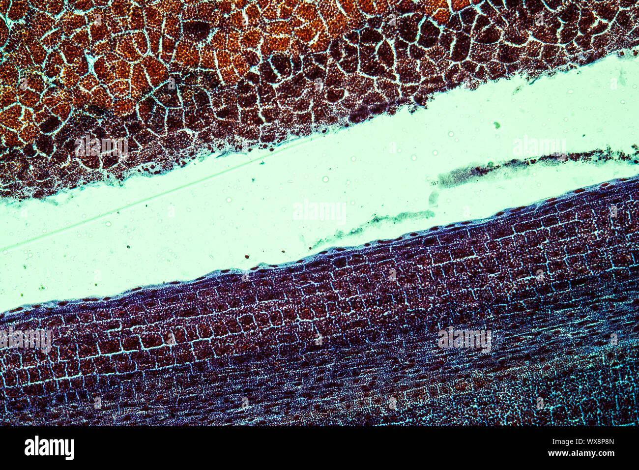 Pine embryo with endosperm along 100x Stock Photo