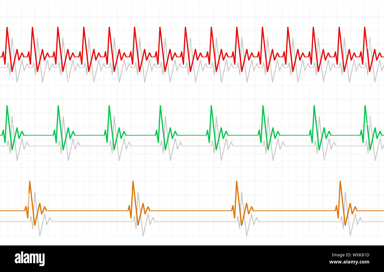 medical illustration of heart fast normal and slow pulse Stock Photo