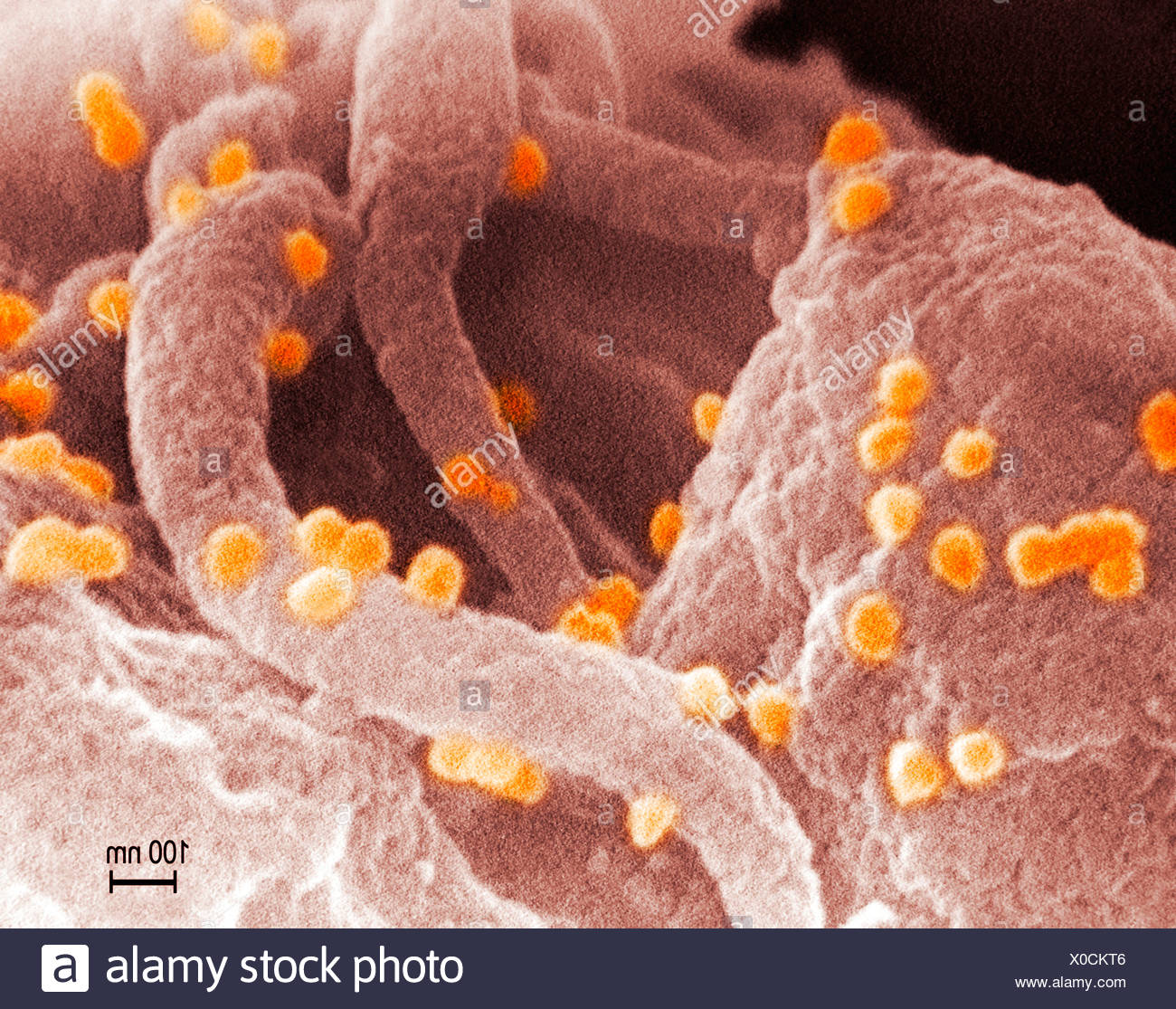 HIV-1 and human lymphocytes - Stock Image