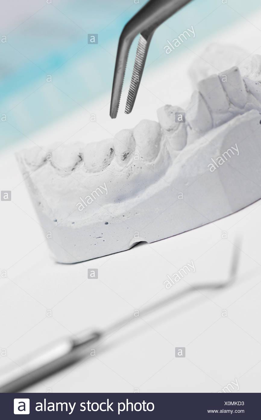 Dentistry, set of teeth, plaster cast, explorer, pincette, - Stock Image