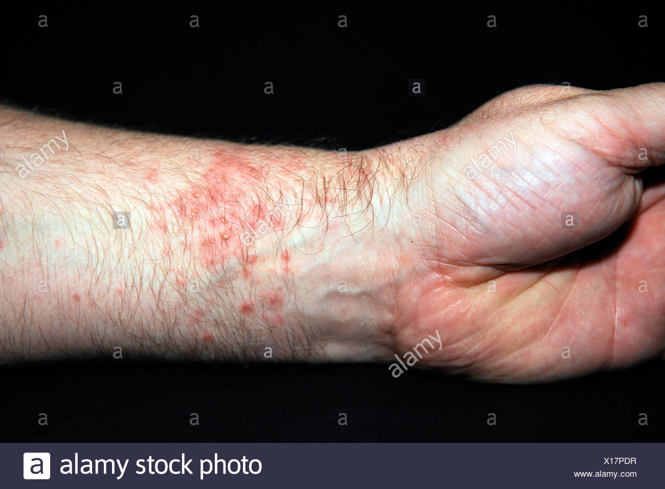 Very red, blistered skin, hives or urticaria after contact with sea anemones (Heteractis spec.) - Stock Image